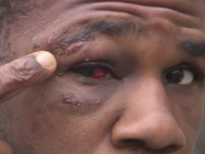 Veteran says he was beaten by Yonkers police during arrest