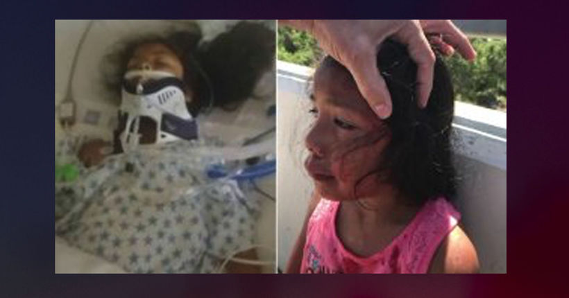 5-year-old girl suffers skull fracture when glass bottle thrown from SUV in Corona