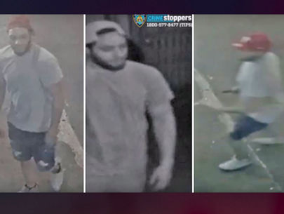 Attacker partially severs own finger while stabbing man in the Bronx