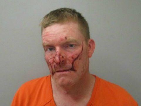 Police: Man charged with first-degree assault after biting friend's finger