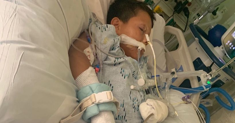 Compton boy fighting to recover after losing hand to firework on 10th birthday