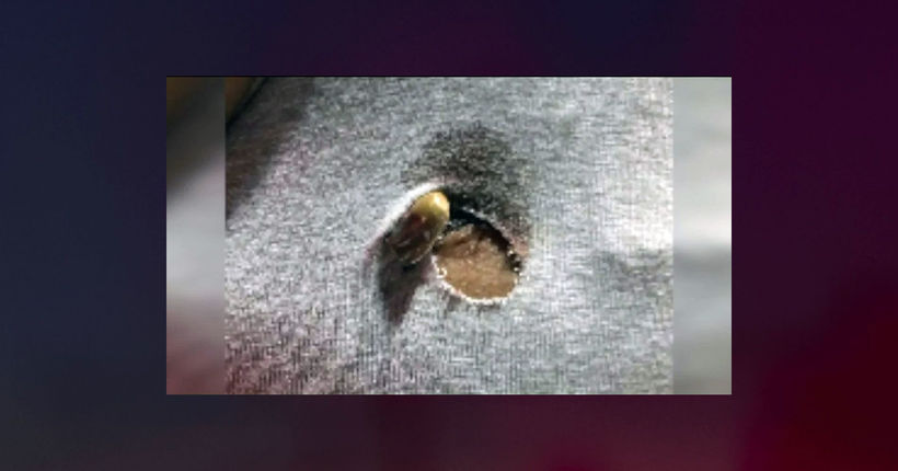 Bullet lodged in woman's bra strap in Brooklyn park shooting