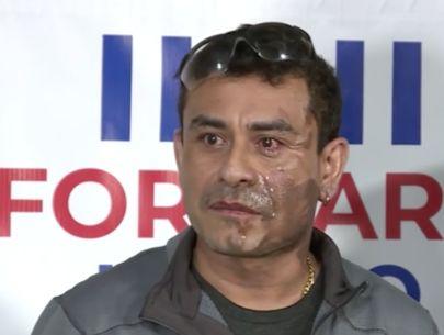 Man's face splashed with acid; police make arrest