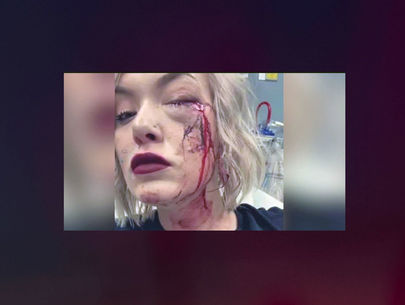 Iowa woman injured in one of several drive-by paintball attacks