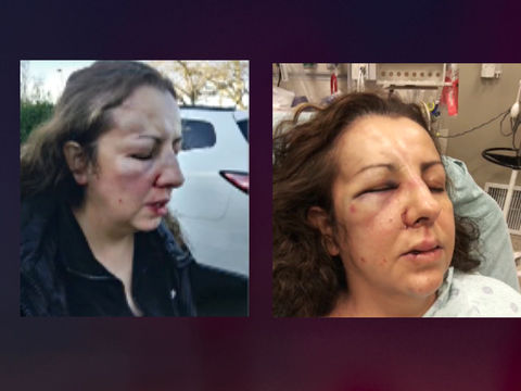 Teen arrested after mom beaten at school defending daughter