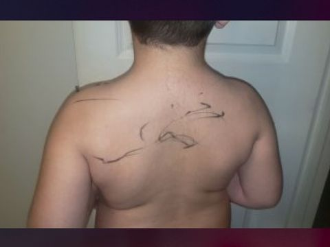 Student with autism comes home with marker on back; family sues