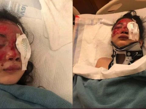 Girl 'could lose sight' from hit-and-run crash; driver at large