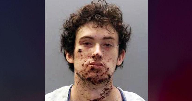 Virginia man blows off hand in bomb-making mishap, claims lawnmower injury: FBI
