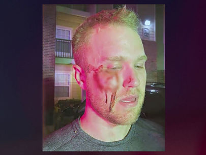 Realtor beaten unconscious says attackers yelled homophobic slurs
