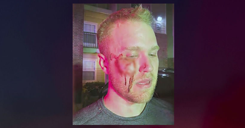 Oklahoma realtor beaten unconscious says attackers yelled homophobic slurs