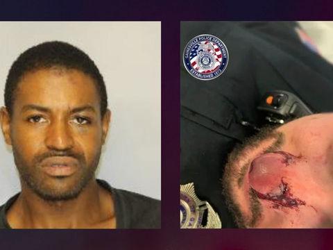 Georgia officer hospitalized after nose bitten during arrest: police