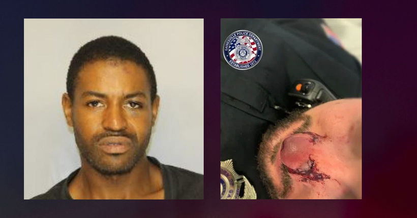 Georgia officer hospitalized after nose bitten during arrest: police